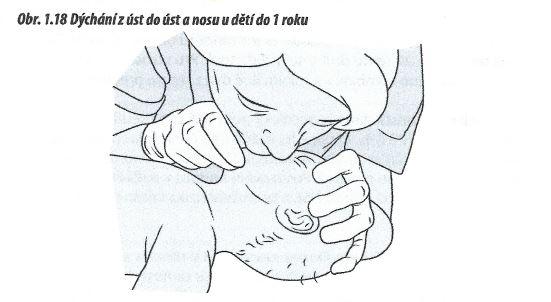 Mýtus 60 — Resuscitace dítěte se neliší od resuscitace dospělého