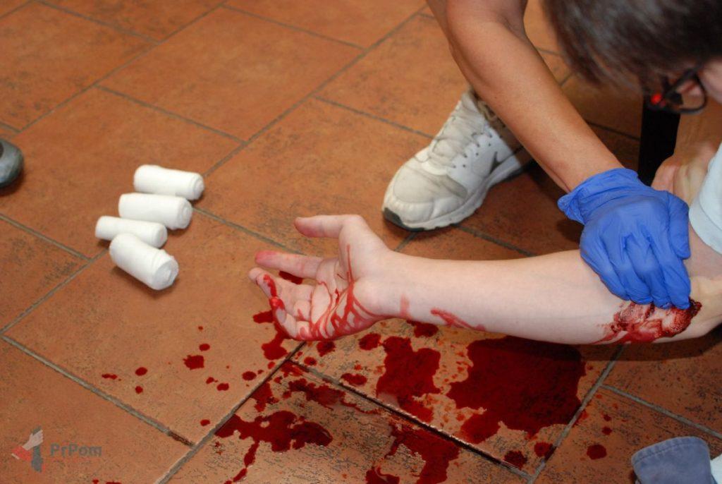 Mýtus 66 — Krvácení zastavím pomocí tlakových bodů