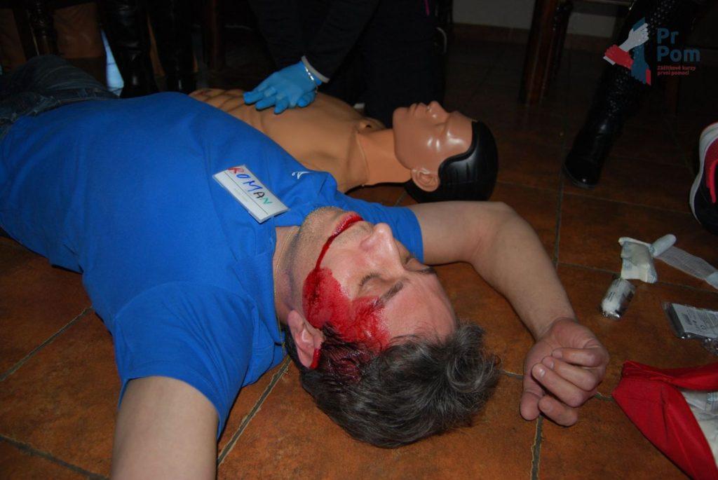 Mýtus 9 — Když má někdo křeče, tak je to epileptický záchvat.