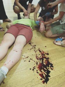Mýtus 21 — Masivní krvácení je třeba zastavit zaškrcovadlem