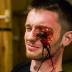 Pronikající poranění oka