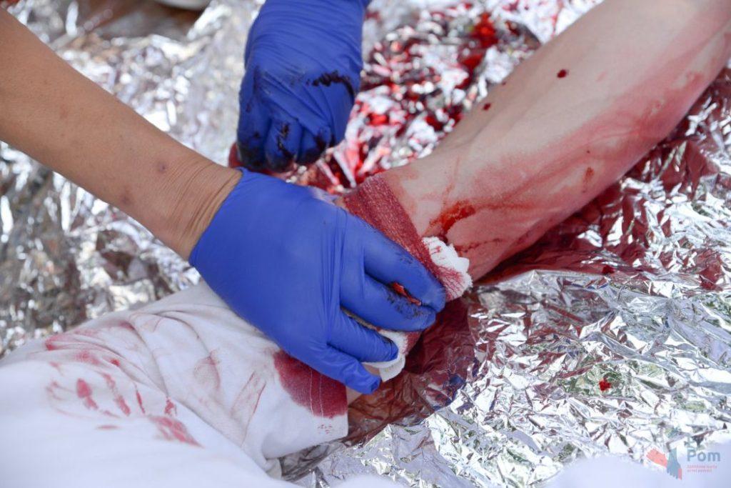 Mýtus 78 — Krvácející ránu ucpěte čímkoli, co máte zrovna po ruce, třeba kamenem.
